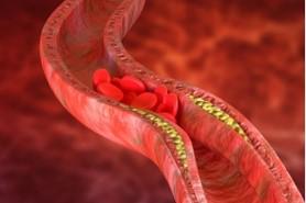 Enfoque y manejo del paciente con dislipidemia